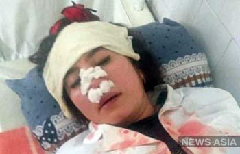 В Узбекистане в больнице сломали нос медсестре и избили ее до сотрясения мозга