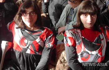 Сиамские близнецы Зита и Гита пройдут курс восстановительного лечения в Киргизии