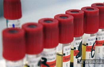 В Бишкеке запускают бесплатное мобильное анонимное тестирование на ВИЧ – где пройти