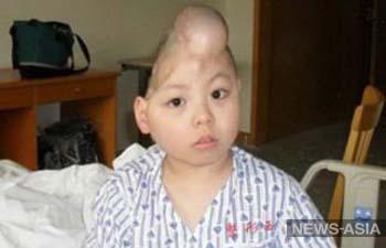 Хо Гочжу - мальчик с половиной головы