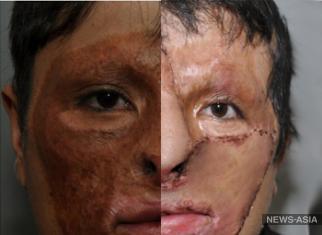 Киргизские врачи провели уникальную операцию по пересадке кожи лица